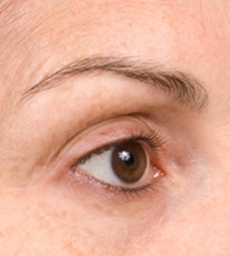 RF - лифтинг век, области вокруг глаз